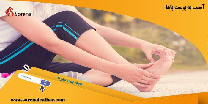 آسیب به پوست پاها از عوارض پوشیدن کفش بدون جوراب