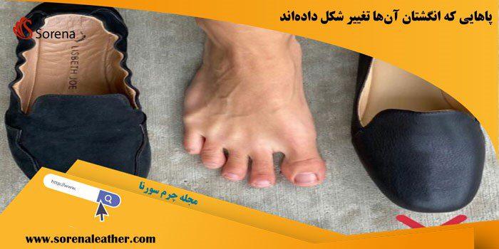 پاهایی که انگشتان آنها تغییر شکل دادهاند