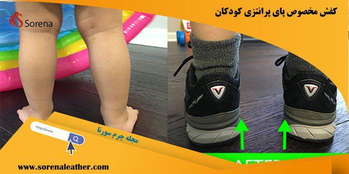 کفش مناسب برای پای پرانتزی کودکان